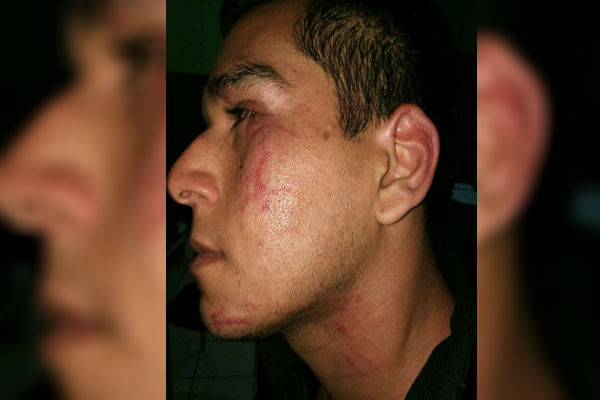 Surquillo: Joven denuncia agresión durante partido de fútbol