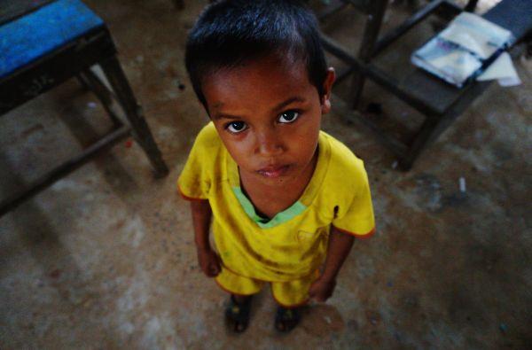 Anemia afecta al 44% de los niños peruanos