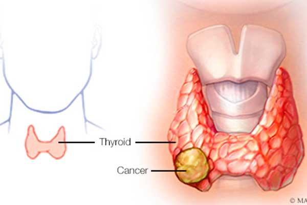 Vivir con cáncer de tiroides