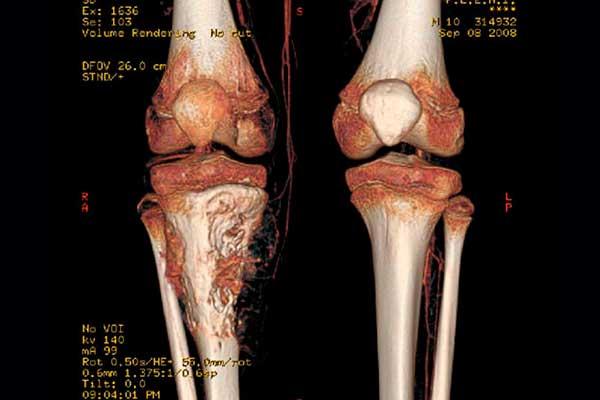 Conozca los datos importantes sobre el osteosarcoma