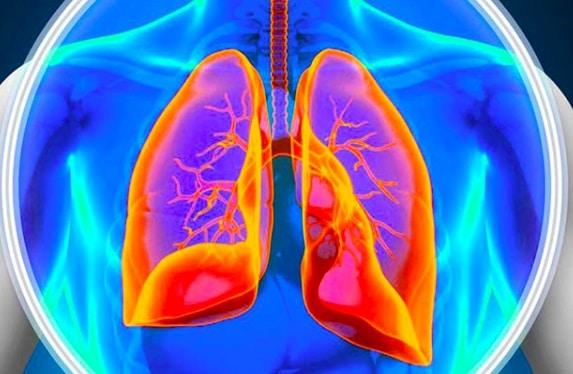 ¿Sabes qué es la Hipertensión Arterial Pulmonar?